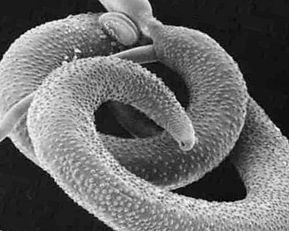 паразиты живущие в человеке лечение