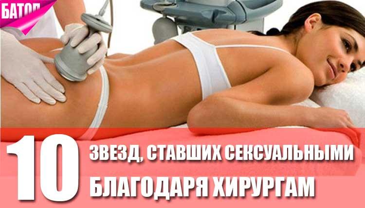знаменитости, ставшие секcуальными благодаря пластической хирургии
