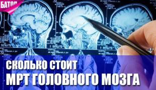 Сколько стоит МРТ головного мозга